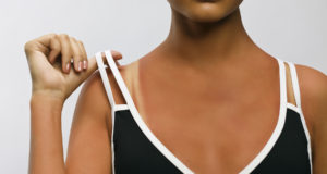 Sunburn Beauty Portrait
